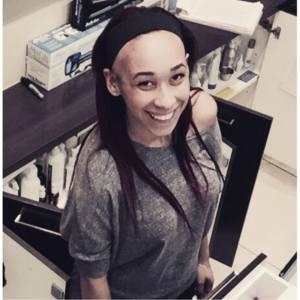 kaiya sicard, alopecia, blogger, alopecia areata