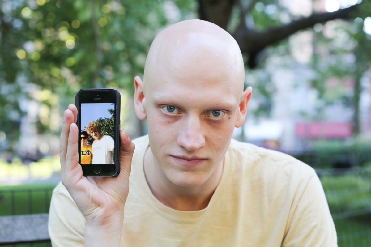 A Win for Alopecia Awareness on Humans of New York