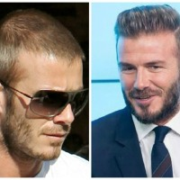 Cosmetic Hair Transplant Trends on the Rise Worldwide